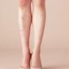 ストッキング越しに見える足のアトピー跡|湿疹を隠すスカート対策とは