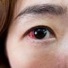 目の周りのかゆみはアレルギーから|アトピー性皮膚炎になるきっかけ