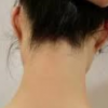 後頭部の髪の生え際のかさぶたが痒い|乾癬と脂漏性皮膚炎の違いとは?