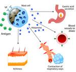 アトピーとigeの関係|1型と4型で違うアレルギー反応の症状