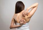 背中のあせも跡を消す方法|ES27クリームが皮膚の代謝を早める